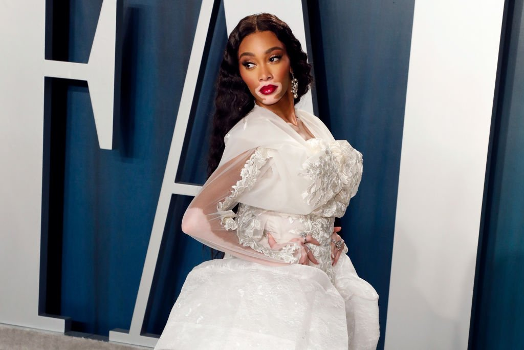 Image Credit: Getty Images / Winnie Harlow attends the Vanity Fair Oscar Party at Wallis Annenberg Center for the Performing Arts on February 09, 2020 in Beverly Hills.